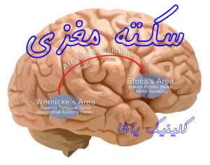 سکته مغزی در گرگان_09358471844