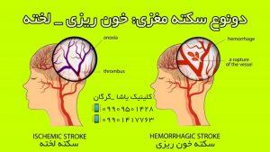 گفتاردرمانی در گرگان 09909501428 کلینیک یاشا
